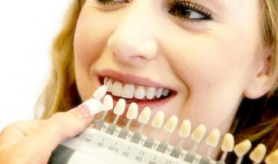2-Whitens-Yellow-Teeth