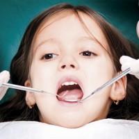 Лекувайте млечните зъби на децата си